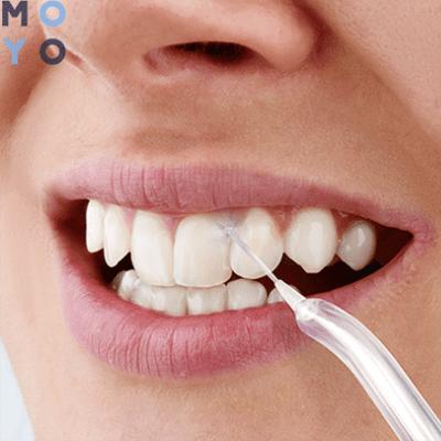 Як правильно вибрати іригатор: який краще розбиває зубний камінь – 7 підказок